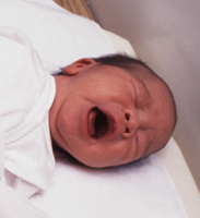 ختنه و درد نوزادان