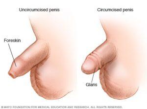 کاهش سرطان آلت تناسلی با ختنه کردن