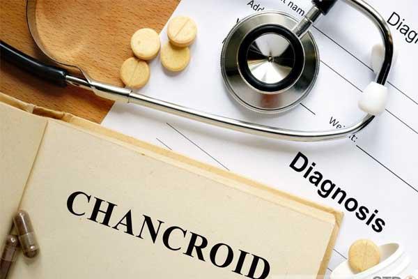 بیماری شانکروئید