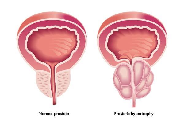 پروستاتیت چیست؟