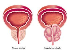 سرطان پروستات   غده پروستات